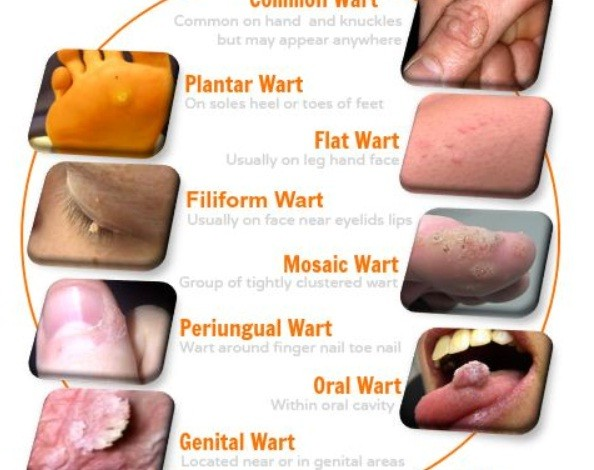 Using Suitable Wart Removal Solution To Abolish Skin Warts